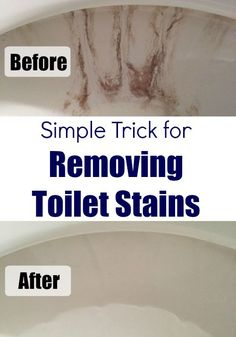 If I had known removing nasty toilet stains was this easy, I would have done it a long time ago!