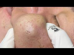 Satisfying Relaxing with Sac Dep Spa #394 - YouTube Covering Acne, Dermatillomania, Beauty Quiz, Pimple Popping, Oddly Satisfying Videos, Blackhead Remover, Pimples, Youtube, Sand Tray