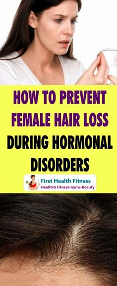 Hair loss affects not only men, but also women. But women are particularly suffering when their hair is falling. How to prevent female hair loss? Stop Hair Loss, Prevent Hair Loss, Hair Transplant Women, Reverse Hair Loss, Dying Your Hair, Hair Loss Women, Hair Loss Remedies, Hair Loss Treatment, Hair A