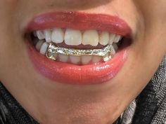 New custom made removable gold caps teeth including the mold kit and shipping/ 6 teeth / Grillz/grills sold by nikgold Gold Teeth Grillz, Gold Fangs, Fang Grillz, Diamond Grillz, Diamond Teeth, Girls With Grills, Girl Grillz, Grills Teeth, Tooth Gem