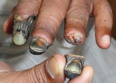effects of krokodil pictures | The effects of a new drug called Krokodil - Imgur  JUST PICK YOUR FINGER OFF-GROSS