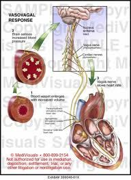 symptoms and causes - vasovagal syncope - mayo clinic | health, Human Body