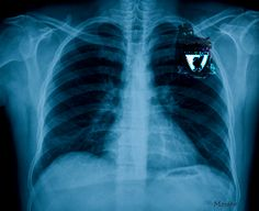 Chronic obstructive pulmonary disease (COPD) can affect the heart over time. Learn how the heart and lungs work together as a team to deliver oxygen to the body. Lung Infection, Heart And Lungs, Disease Symptoms, Medicine Journal, Scientific American, Lunges, Vape, Forever Gif, Radiation Exposure