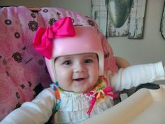 Plagiocephaly Helmet Bows Amp Flowers Decorate By