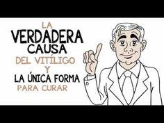 Vitamina D Cura Vitiligo-How To Cure Vitiligo Fast Disease Symptoms, Autoimmune Disease, Ayurvedic Home Remedies, Medical Textbooks, Vitiligo Treatment, Skin Grafting, Spots On Face, Chronic Stress, Spot Treatment
