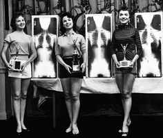 """Chiropractic Beauty Pagent, 1956. """"Miss Beautiful Spine"""""""