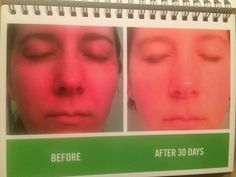 A before and after photo of reducing redness using the Sooth Regimen created by Rodan + Fields