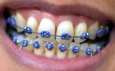 How much do braces cost? Here we look at the various different types of braces available in the UK and discuss how much braces for adults cost. Dark Blue Braces, Fake Braces, Braces Smile, Braces Cost, Braces Tips, Dental Braces, Teeth Braces, Dental Care, Teeth Dentist