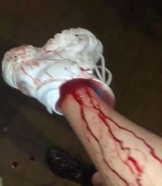 I don't know what gives me the most agony, the blood or the fact that it's a white shoe. Red Aesthetic, Aesthetic Grunge, Aesthetic Pictures, Tumblr Boys, Ulzzang, Creepy, Kawaii, It Hurts, At Least