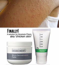Finally a solution for #keratosis #pilaris #chickenskin #allaboutthatpaste   https://tannette.myrandf.com/Shop/Soothe