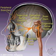 Diagram of the Trigeminal Nerve System  Click for info on Trigeminal Neuralgia