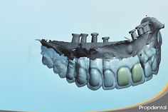 cadcam de una rehabilitación de implantes dentales cadcam of #dentalimplants