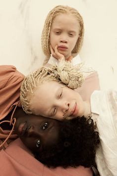 Three Sisters - Albino Twins - Brazil Awesome Concept ☆♡☆ 'Rare Flowers' vinicius-terranova-flores-raras-11.jpg (1072×1608)
