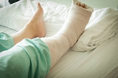 7 Tips For Recovering After Foot Surgery Ankle Cast, Leg Cast, Bunion Surgery, Ankle Surgery, Ways To Sleep, How To Get Sleep, Broken Fibula, Broken Ankle Recovery, Ankle Fracture