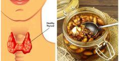 Υγεία - Ο θυρεοειδής αδένας είναι υπεύθυνος για τη ρύθμιση, μεταξύ άλλων, της θερμοκρασίας του σώματος, του μεταβολισμού και των χτύπων της καρδιάς, ενώ η δυσλειτο