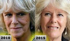 botoks etkisi olan yüz maskesi
