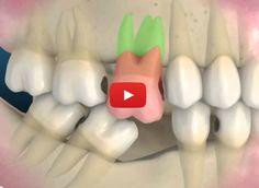 Consequências da Perda de um Dente | Profissão Dentista