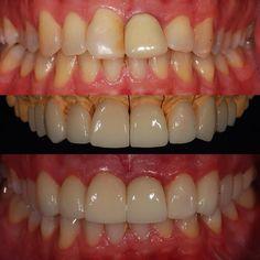 """#done! Às vezes temos que abrir algumas exceções para as necessidades de nossos pacientes! Domingo de muito trabalho aqui em Campinas!  Instalação de 1 coroa e de 9 laminados (""""lentes de contato"""") em dissilicato de lítio (E-Max)! Agora é aguardar a reacomodação gengival!  Melhora significativa do sorriso! Paciente muito satisfeito! Gratidão!  Agora é descansar pq amanhã tem mais!  #odontologia #odontologiaporamor #odontologiaestetica #cosmeticdentistry #aestheticdentistry #dentistry #domingo…"""