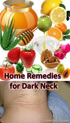 24 Home Remedies for Dark Neck : #Remedies