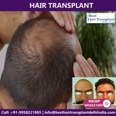 If you have been thinking about getting a Hair Transplant surgery in Delhi contact us for an appointment where we can discuss your requirements in more details. EMI Available Pay Easy Monthly Instalments Consult your plan for hair transplant with our US Certified Plastic Surgeon via appointment at: Web: www.besthairtransplantdelhiindia.com #HairTransplant #hairtransplantsurgeon #eyebrow #eyelash #beard #moustaches #cosmeticsurgery #plasticsurgeon #drkashyap #delhi #india Hair Transplant Surgery, Best Hair Transplant, Eyelashes, Eyebrows, Moustaches, Delhi India, Cool Hairstyles, Plastic, How To Plan