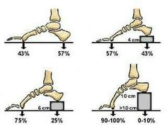 Foot Pain and High Heels: the feet are the support to the entire body and look at how your weight is multiplied when wearing these heights! Alexander Technique, Postural, Podiatry, Muscle Anatomy, Sports Medicine, Foot Pain, Anatomy And Physiology, Feet Care, Chiropractic