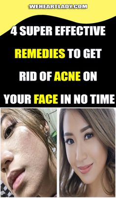 4 Super Effective Remedies To Get Rid Of Acne On Your Face In NO TIME Vitamin A Acne, Get Rid Of Spots, Acne Treatment At Home, Vitamins For Women, Acne Spots, Hormonal Changes, How To Get Rid Of Acne, Face Skin
