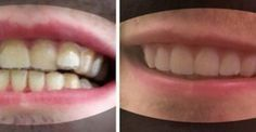 Τα Δόντια του ήταν στραβά αλλά δεν είχε Λεφτά για να βάλει Σιδεράκια. Δείτε ΤΙ σκέφτηκε για να τα ισιώσει!