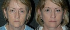 Grandma Achieves What Doctors Couldn't: Wipes Years From Her Appearance In Minutes Anti Aging Cream, Anti Aging Skin Care, Grey Hair Home Remedies, Eyelid Lift, Wrinkle Remover, Skin Cream, Best Face Products, Anti Wrinkle, Beauty Skin