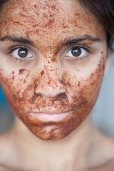 Use cinnamon to remove blackheads. The ingredients are: 1 teaspoon of cinnamon, 2 tablespoons organic honey and a little nutmeg. Mix ingredients until you get a smooth paste, then apply it on clean skin for 15-20 minutes, you can put a hot towel mask to help open pores and thereby remove the blackheads.