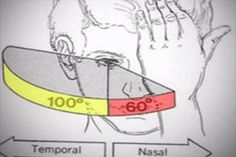 A photo depicts the horizontal range of the right visual fields, showing a nasal field of 60 degrees and temporal field of 100 degrees.