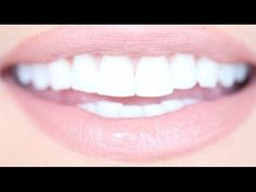 How to Get Really White Teeth For Cheap