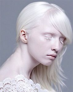 Living with Albinism  Albinism is an inherited condition present at birth, characterized by a lack of pigment that normally gives color to the skin, hair, and eyes. Many types of albinism exist, all of which   involve lack of pigment in varying degrees. Check out at: http://womenfitness.net/beauty/skin/albinism.htm