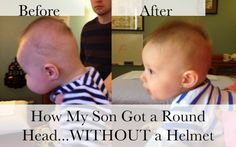 We avoided a helmet for our son by using osteopathic manipulative therapy. It was gentle, fairly quick and non restrictive for our little guy. Read all about it here
