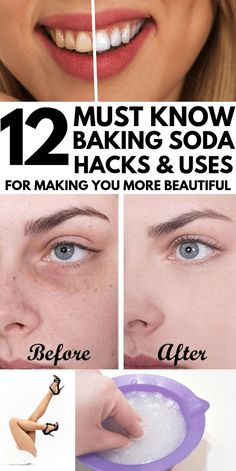 Who knew BAKING SODA had so many INCREDIBLE uses? I found these awesome baking soda hacks that have changed my life. From whiter teeth and silky skin to cleaning my bathroom, kitchen, stove and even m Baking Soda Beauty Uses, Baking Soda Uses, Baking Flour, Cake Baking, Bread Baking, Baking Soda Vinegar, Baking Soda Shampoo, Cider Vinegar, Baking Soda Teeth
