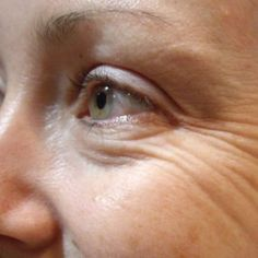 Neck, surrounding areas of the eyes and forehead are the most troubled areas where deep wrinkles start to develop. How long you can keep the wrinkles away depends on how proactive you're in terms of skin care. Beauty Care, Beauty Hacks, Beauty Tips, Home Remedies For Wrinkles, Wrinkle Remedies, Eye Wrinkle, Wrinkle Creams, Crows Feet, Wrinkle Remover