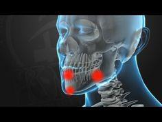 KRAV MAGA TRAINING • Knockout Pressure Points (part 2 of 5) - YouTube