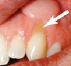 Home Remedies for Sensitive Teeth-This affliction affects 45 million adults in the Untied States.  Luckily, there are some home remedies for sensitive teeth.  #sensitive #teeth #remedies