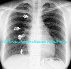 9. 先天性の異常 症例088:肺動静脈瘻 TAE後の胸部単純X線写真,『コンパクトX線アトラスBasic 胸部単純X線写真アトラス vol.1 肺』