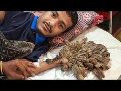Top news Tree Man What is the tree man disease? Top news Tree Man What is the tree man disease? #Top #news #Tree #Man What is the #tree_man #disease?  What is the tree man disease? What causes tree man illness? Who is the tree man? How do you get EPIDERMODYSPLASIA VERRUCIFORMIS?  A rare disease gave him tree branch-like hands. After 16 surgeries Dad dubbed 'tree man' due to bark-like warts that covered his body 'Tree Man' regains use of his hands after 16 surgeries - NY Daily News The
