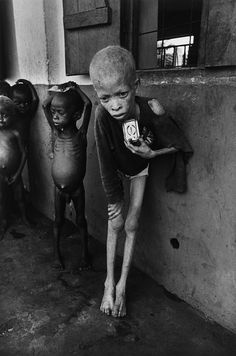Albino Boy, Biafra by Don McCullin
