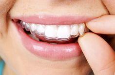 The Pros and Cons of Invisalign from #InStyle