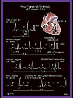 ECG - Four Types of AV-block. This is good cause av blocks can be confusing Med Surg Nursing, Cardiac Nursing, Nursing Assessment, Nursing Mnemonics, Cath Lab Nurse, Ekg Interpretation, Nursing School Notes, Critical Care Nursing, Emergency Medicine