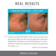 Kick wrinkles to the curb with Rodan + Fields Redefine Power pack and Acute Care.  So long crows feet.