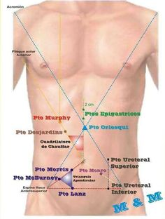 Puntos dolorosos abdomen