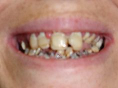 Actual before and after photos of patients. See what we can do for you....