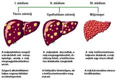 magas vérnyomású mentőkártya a hipertónia minden típusa