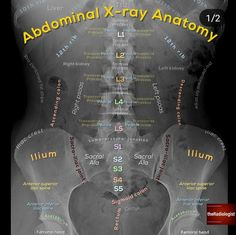 Read on for some tips that helped me with AXR interpretation!    👨… Read on for some tips that helped me with AXR interpretation! Medical Facts, Medical Science, Medical Information, Radiology Student, Radiology Imaging, Nursing School Notes, Medical School, Medical Anatomy, Human Anatomy And Physiology
