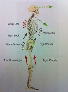 Upper and Lower Crossed Syndrome Psoas Release, Muscle Imbalance, Yoga Anatomy, Spine Health, Reflexology Massage, Muscle Anatomy, Neck Pain, Physiology, Massage Therapy
