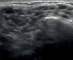 Parotid parenchyma in Sjögren syndrome Salivary Gland, Thyroid Gland, Assessment, Medicine, Ultrasound, Thyroid, Business Valuation