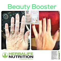 , Come to visit my Herbalife Distributor Website! Herbalife Weight Loss, Herbalife Nutrition, Herbalife Distributor, Strawberry Lemonade, Skin Elasticity, Younger Looking Skin, Collagen, Your Skin, How To Get